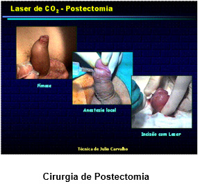 laser-urologia